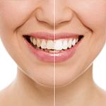 West Brookfield Dental - Teeth Whitening