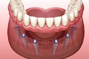 Diagram of dental implants in West Brookfield securing a denture