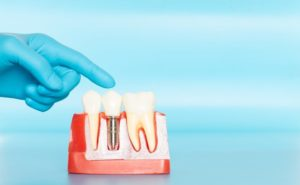Dentist pointing to model of dental implants in West Brookfield