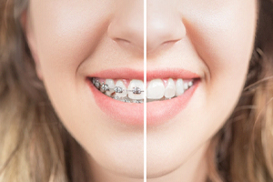 Healthy smile with and without braces